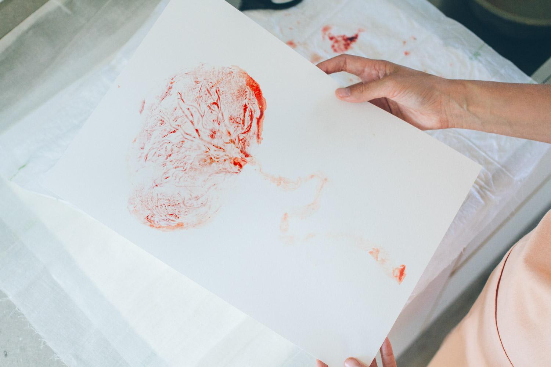placenta12-20170730_0137-M