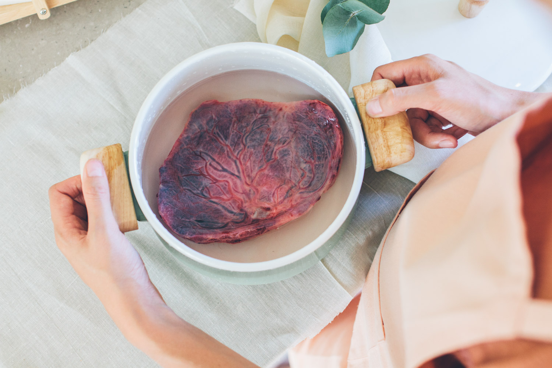 placenta26-20170730_0205-M
